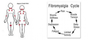 Fibromyalgia Cycle of Pain